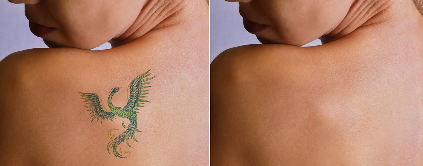 Láser - Eliminación De Tatuajes